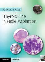 Thyroid Fine Needle Aspiration