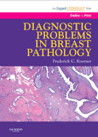 Diagnostic Problems in Breast Pathology
